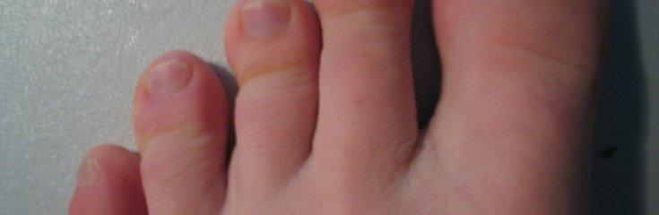 Артрит ног симптомы лечение фото