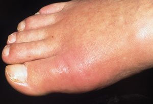 как лечить подагру на ногах