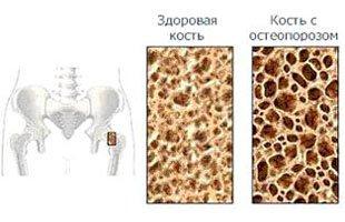 остеопороз - симптомы