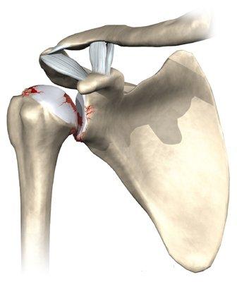 патогенез артроза плечевого сустава