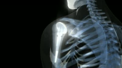 Хирургическое лечение артроза плечевого сустава