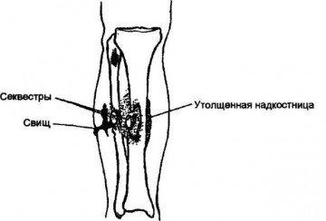 Утолщение надкостницы при остеомиелите