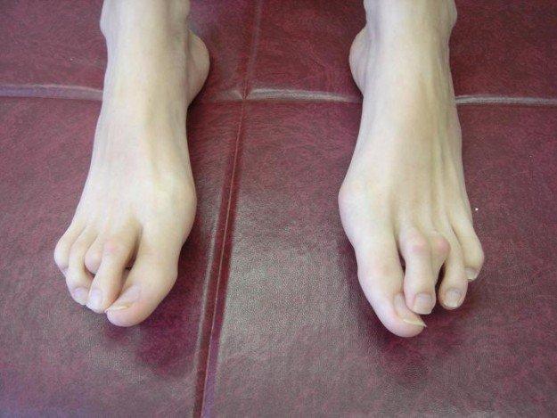 Пальцы ног, поражённые арахнодактилией