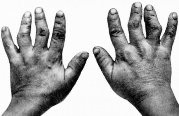 Укороченные и деформированные пальцы при артрите Кашин-Бека