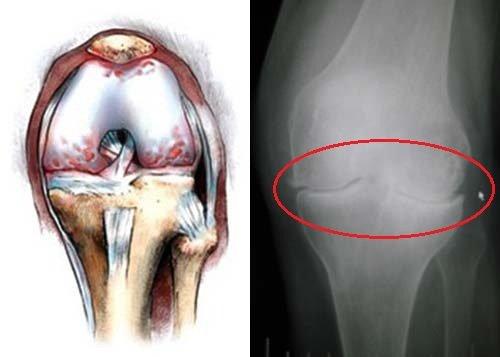 Остеофит на рисунке и на рентгеновском снимке
