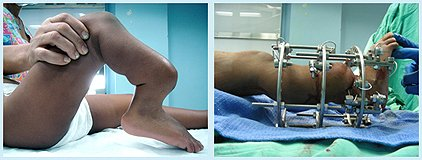 Вид конечности при остеоартрозе до и во время проведения лечения.