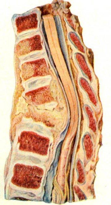 Туберкулёзный спондилит: разрушение позвонков с формированием натёчного абсцесса, отслаивающего фасцию.