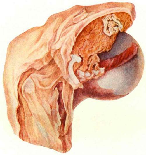 Творожистый очаг в области вертлужной впадины, переход воспаления на синовиальную оболочку.