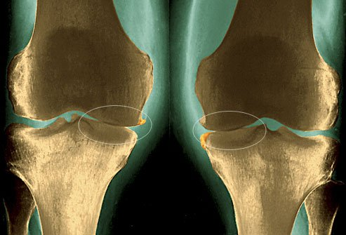 Сужение суставной щели из-за истончения хряща при деформирующем остеоартрозе