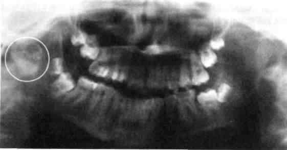 рентгенограмма височно-нижнечелюстного сустава