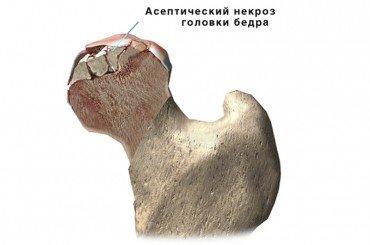 асептический некроз головки