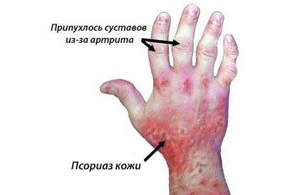 проявления псориатического артрита