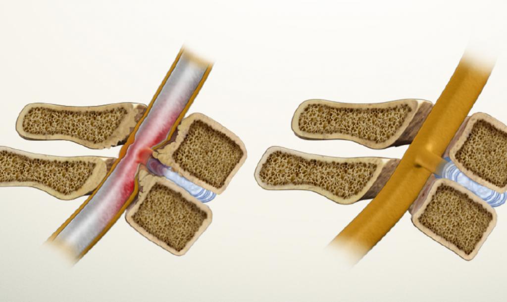 стеноз позвоночного канала и норма