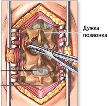 устранение сдавления спинного мозга при стенозе позвоночного канала