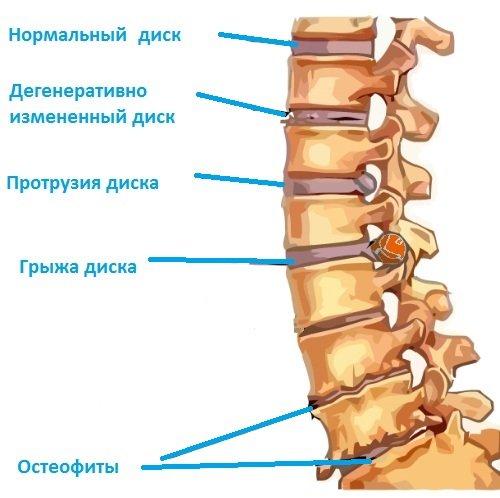 причины стеноза позвоночного канала