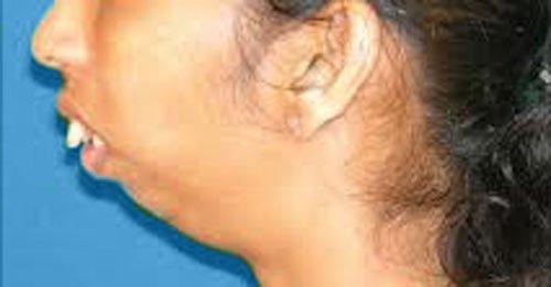 микрогения при анкилозе височно-нижнечелюстного сустава
