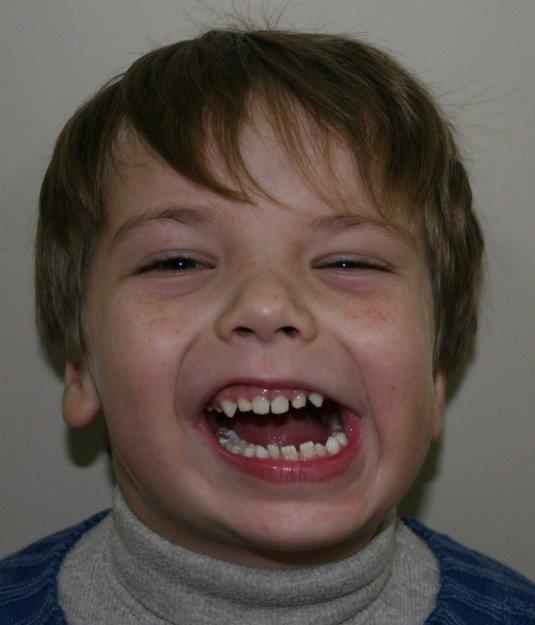 ребёнок с анкилозом височно-нижнечелюстного сустава