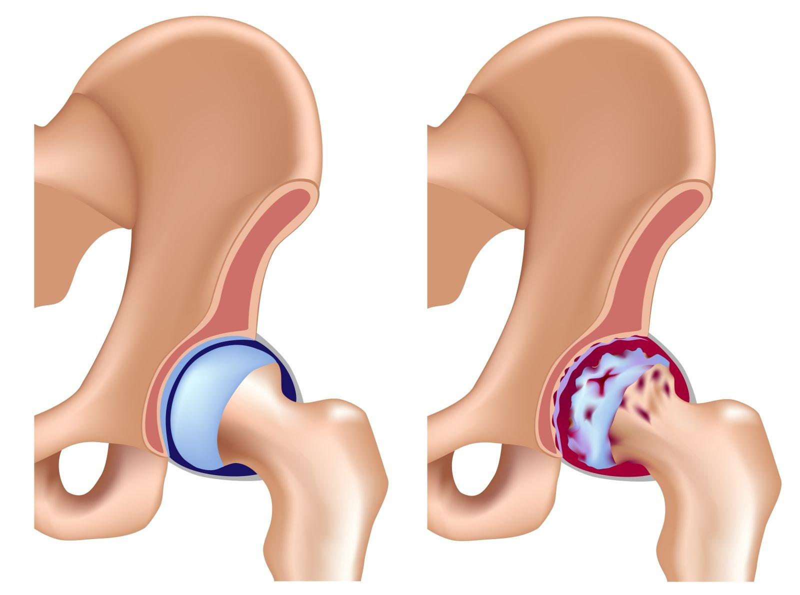 Асептический некроз головки бедренной кости: причины, симптомы и диагностика