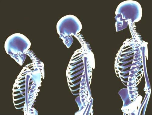 Изменения в позвоночнике из-за мелких переломов, при остеопорозе