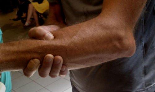 Вынужденная поза, при вывихе локтевого сустава