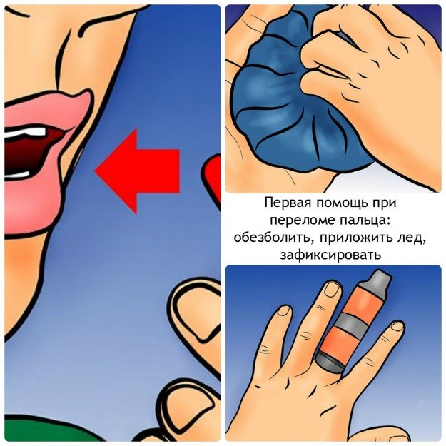 Первая помощь при переломе пальцев рук