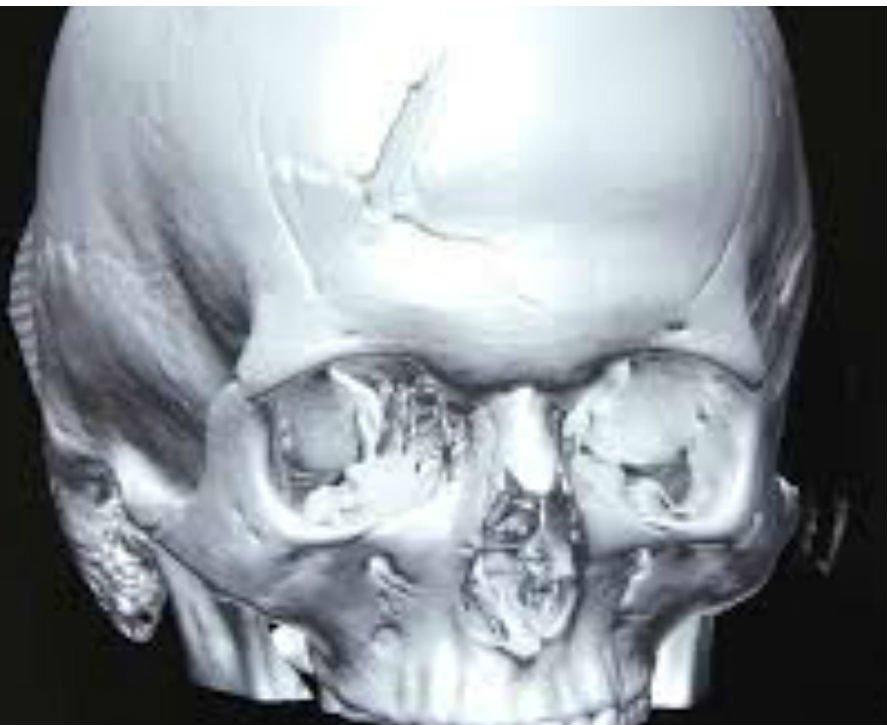 Симптомы и первая помощь при переломе черепа