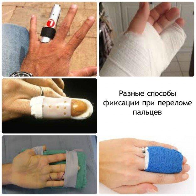 Методы фиксации при переломе пальцев рук