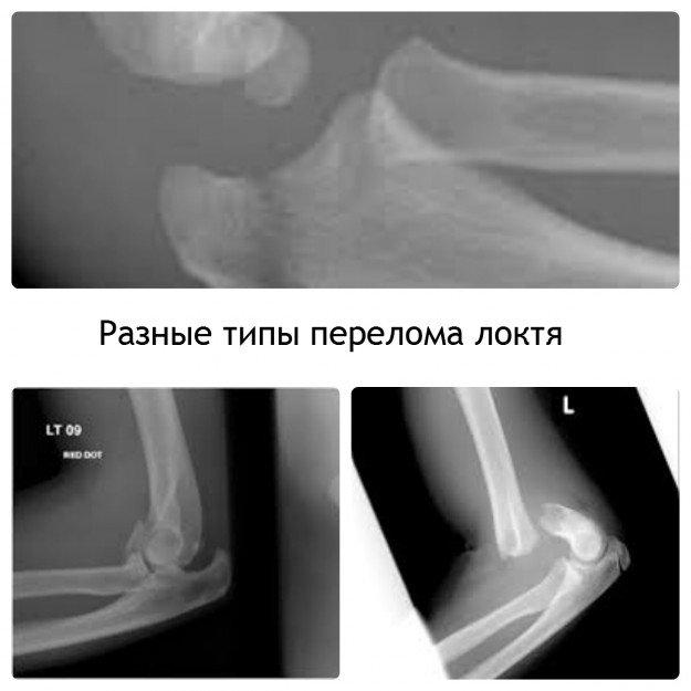 Ретгеновские снимки перелома локтя