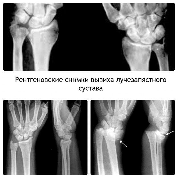 Ренигеновские снимки вывиха лучезапястного сустава