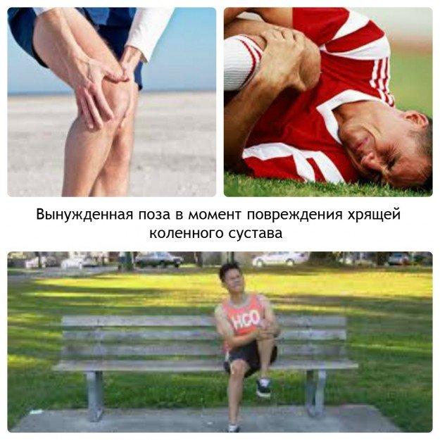 Вынужденная поза при травме колена