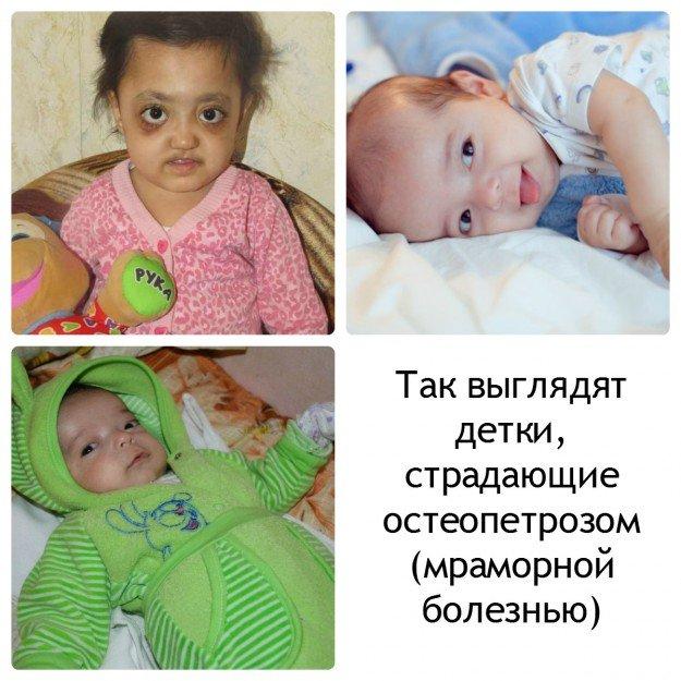 Дети страдающие остеопетрозом. похожи друг на друга