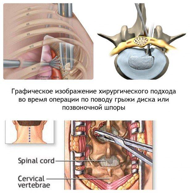 Графическое изображение операции