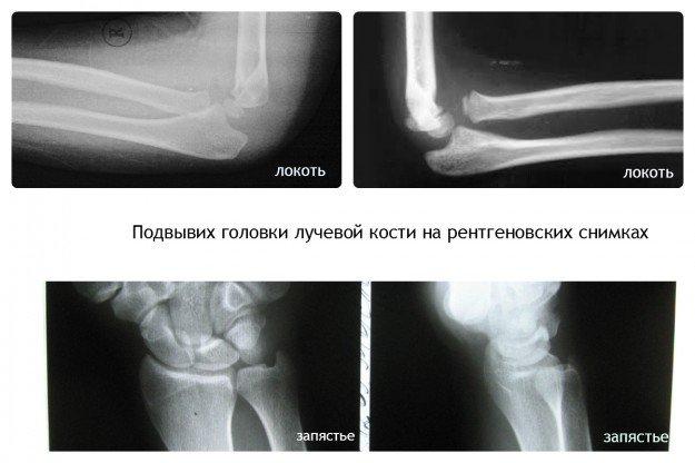 Подвывих головки лучевой кости может случиться как со стороны локтя. так и со стороны запястья