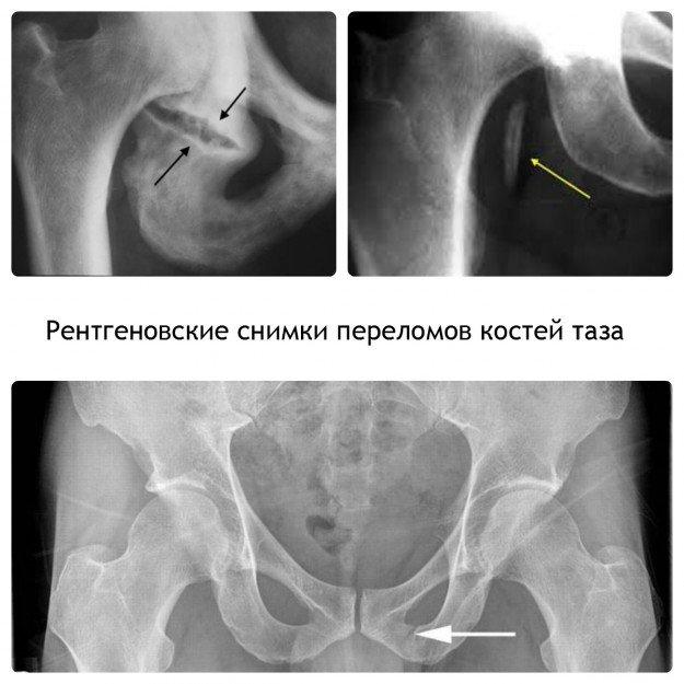 На рентгеновских снимках четко видны места переломов