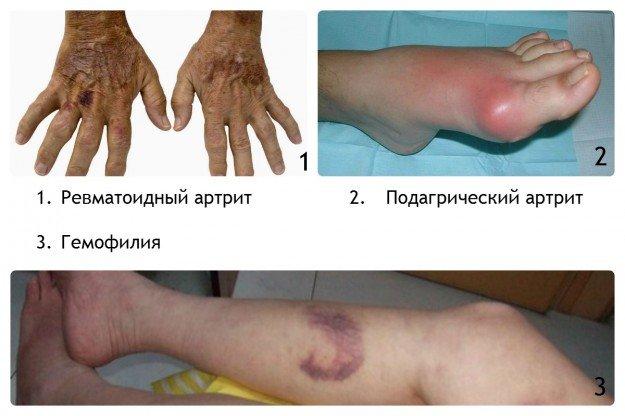 Заболевания, вызывающие появление синяков
