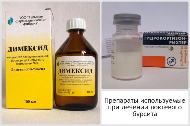 препараты используемые при лечении локтевого бурсита