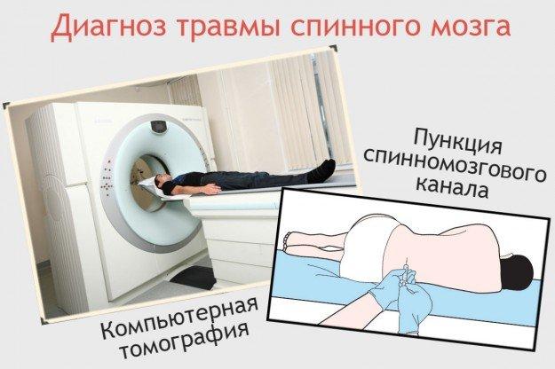 Диагноз травмы спинного мозга пункция, компьютерная томография
