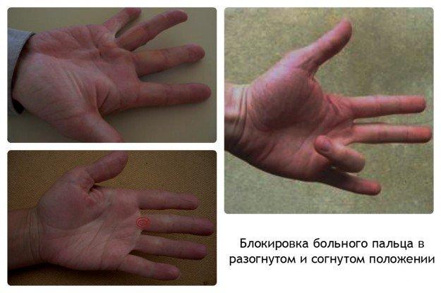 Блокировка пальца, - мучительное, для больного, состояние