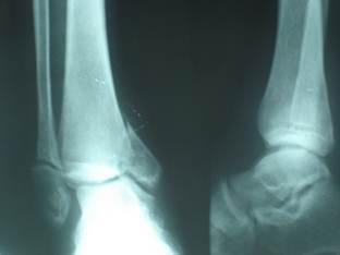 диагностика перелома лодыжек без смещения.