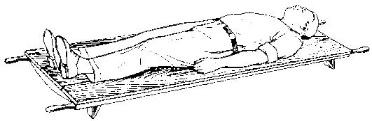 транспортировка при переломе позвоночника