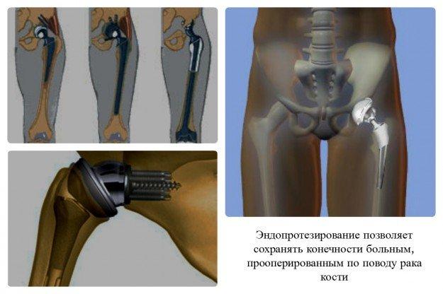 Хирургия - основной метод лечения рака кости