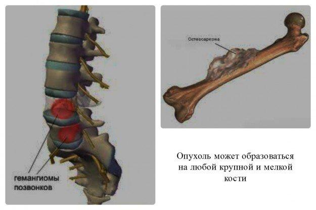 Опухоль может поразить любую кость