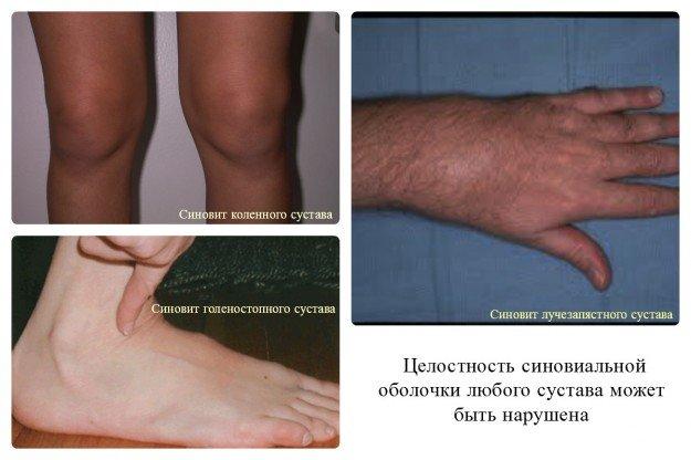 Синовиту подвержены все суставы