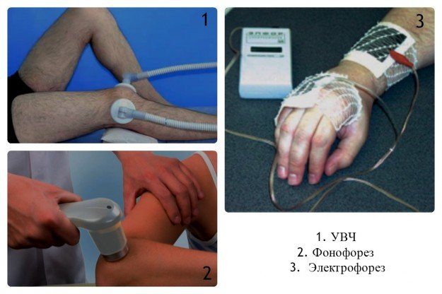 При синовите полезны физиотерапевтические процедуры