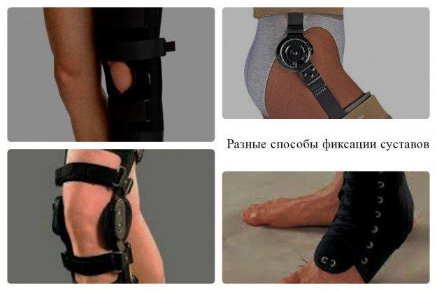 Каким именно способом следует зафиксировать сустав, решает только врач