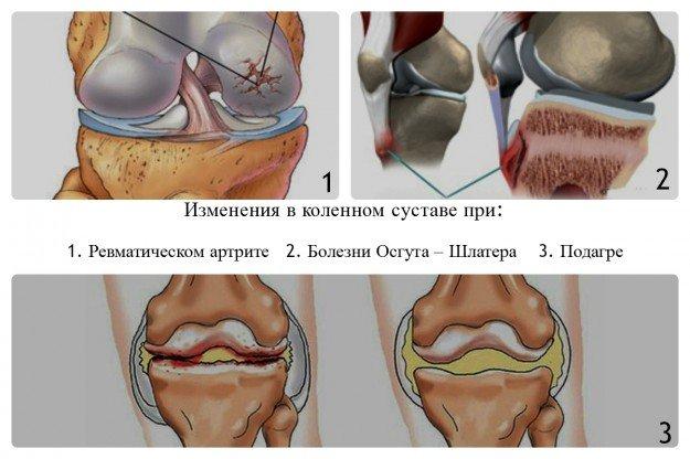 Болезни, чаще всего вызывающие боли в колене