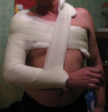 человек с гипсом на плече и грудной клетке