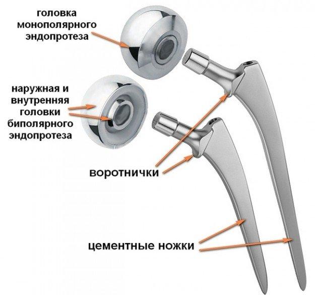 Двухполюсный эндопротез
