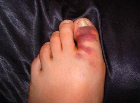 Гематома при переломе пальца