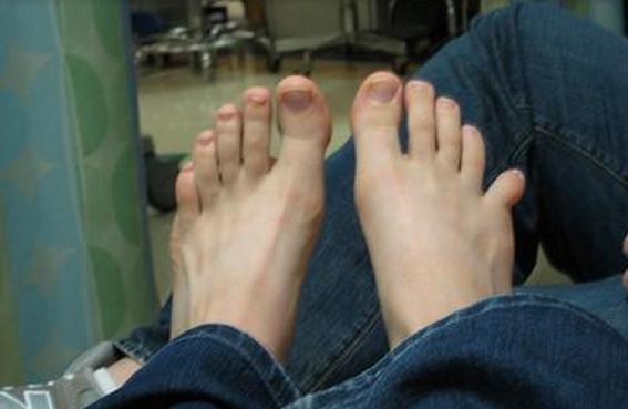 Неестественное положение пальца при переломе